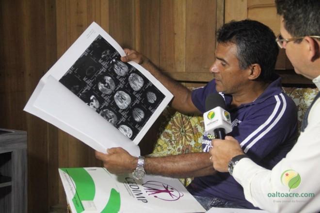 Raimundo mostra os exames que fez até descobrir a doença que pode atingir seus filhos - Foto: Alexandre Lima