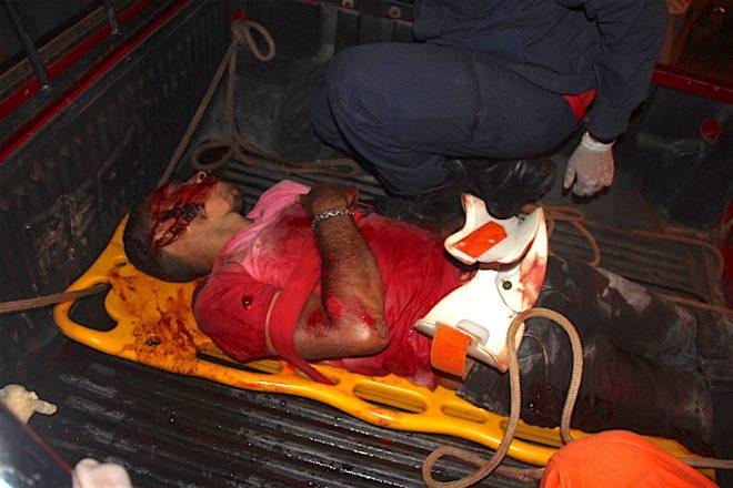 Alcimar chegou bastante machucado no hospital de Brasiléia,mas teve ser resgatado na carroceria de uma pick-up por falta de ambulâncias na fronteira - Foto: Alexandre Lima