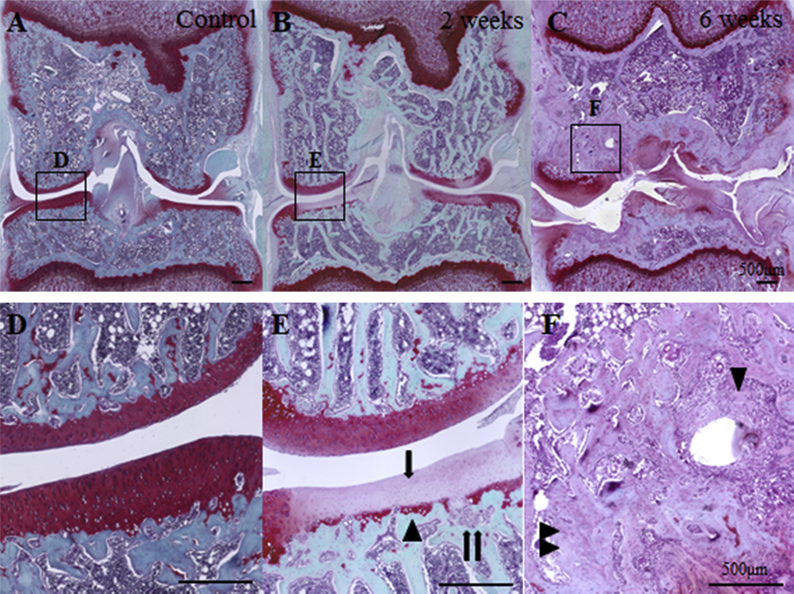 Nociceptive Phenotype Alterations Of Dorsal Root Ganglia