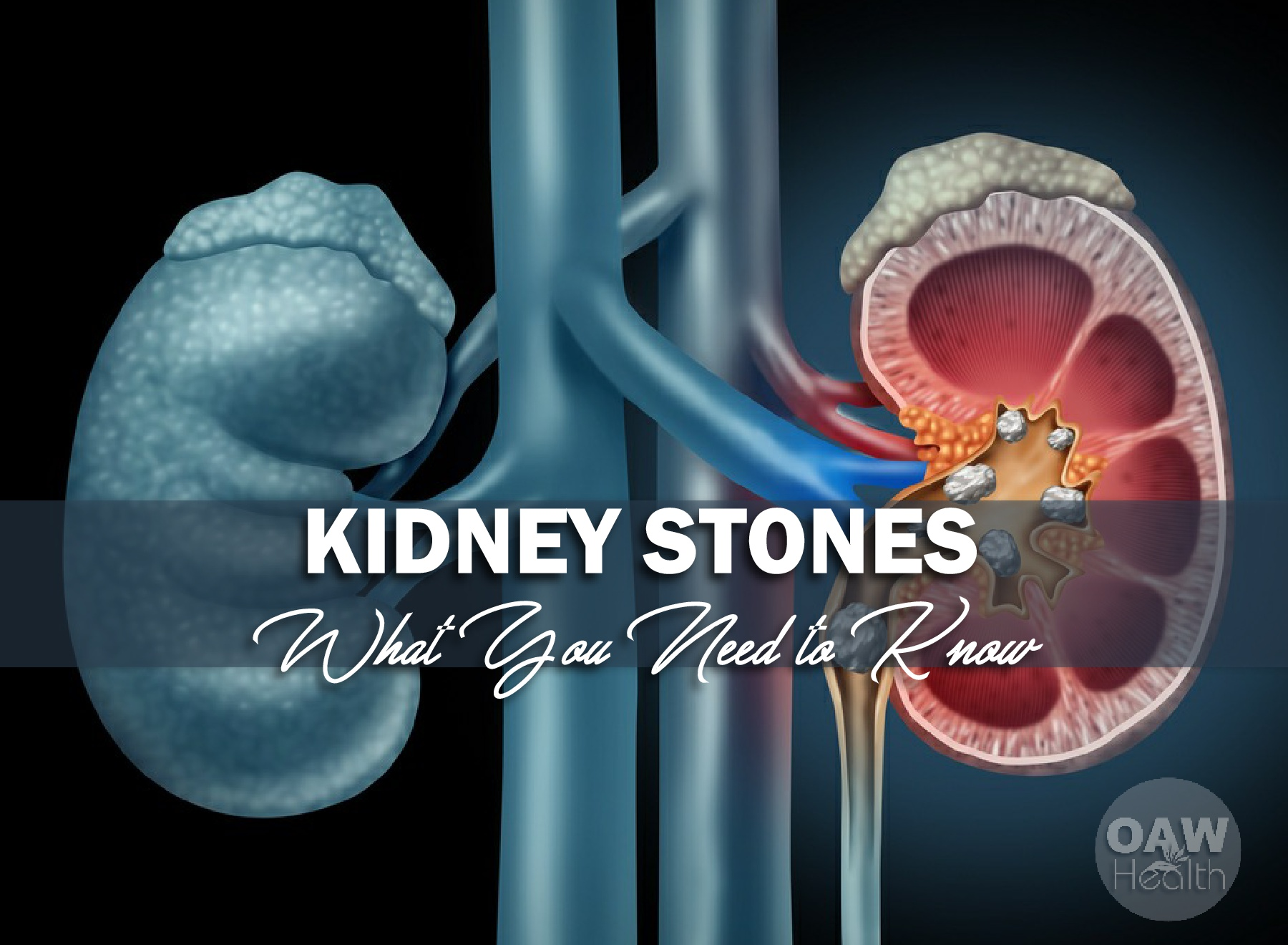 Kidney Stones – What You Need to Know