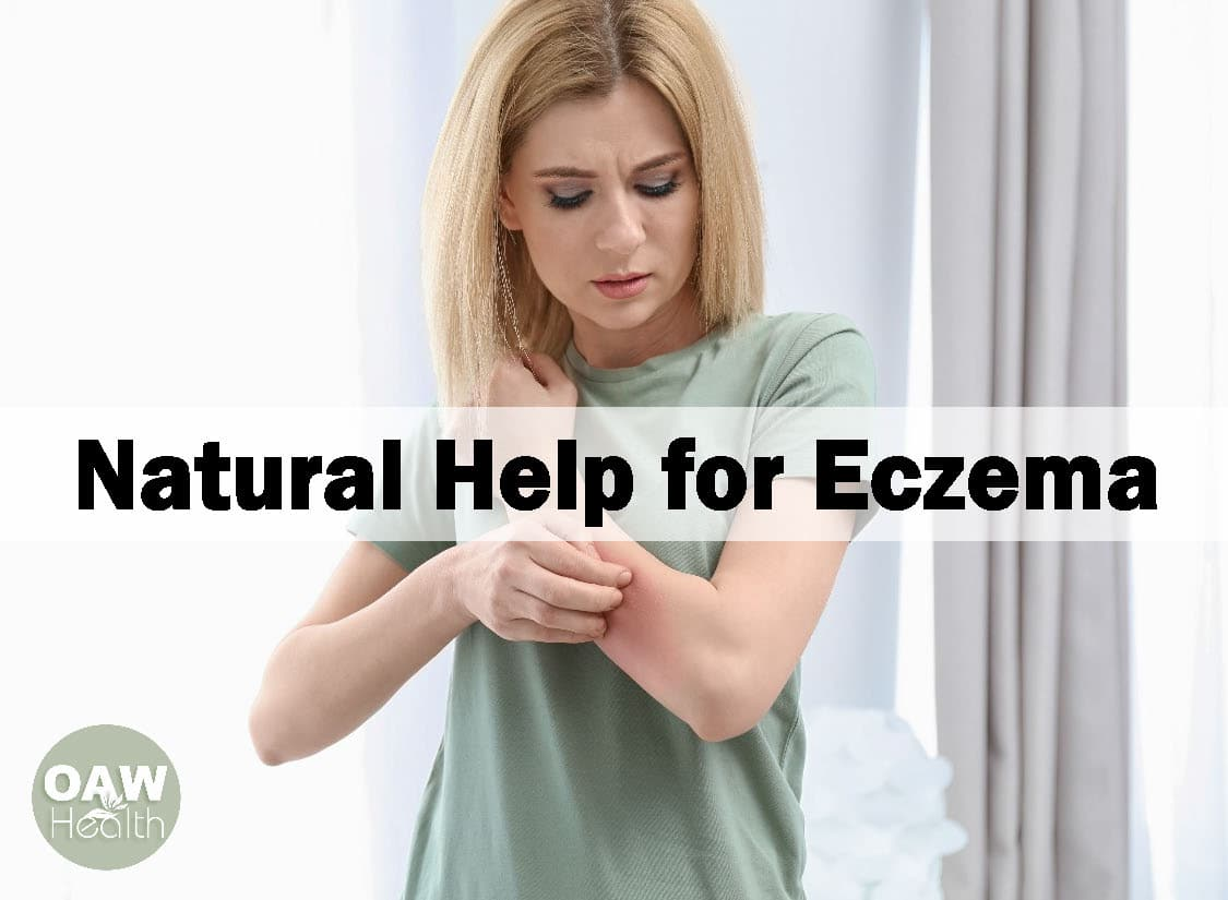 Natural Help for Eczema