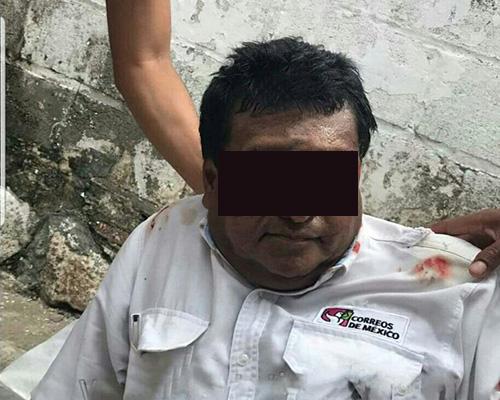 Se lesiona trabajador de Sepomex