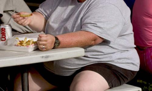 Resultado de imagen de obesidad y celulitis