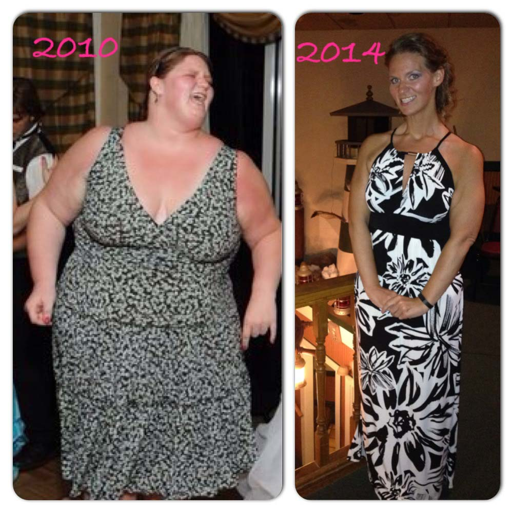 Michelle Before And After Lap Band Surgery – Obesity Coverage
