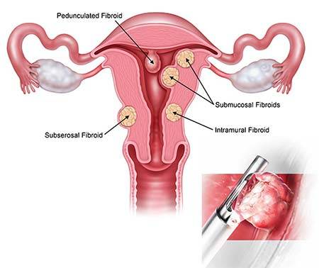 Image result for uterine polyp removal without anesthesia