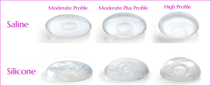 Breast Implants in Chennai