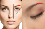 Browlift and Forehead Lift in Jacksonville by Lewis J. Obi M.D.