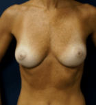 breast-aug-11-before