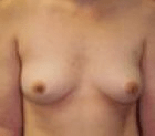 breast-aug-2-before