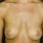 breast-aug-4-before
