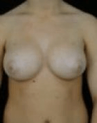 breast-aug-5-after