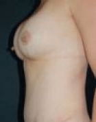 breast-aug-7-after-scarless