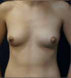 breast-aug-9-before