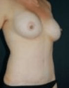 breast-lift-3-after-b-scarless