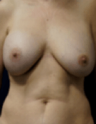breast-lift-4-before