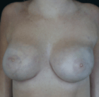 breast-lift-6-after