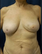 breast-reconstruction-1-before