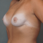 breast-reconstruction-2-after