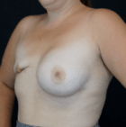breast-reconstruction-2-before