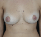 breast-reduction-3-after