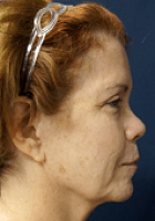 facelift-9-before