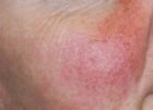 facial-rejuvenation-3-before