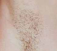 laser-hair-removal-2b