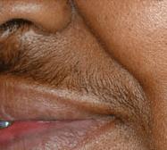 laser-hair-removal-3b