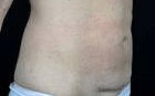 slimlipo-11-after