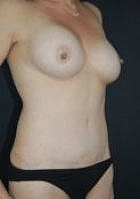 tummy-tuck-1-after