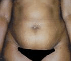 tummy-tuck-3-before