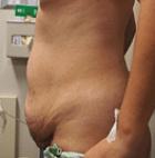 tummy-tuck-7-before