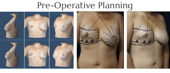 breast-reconstruction-planning