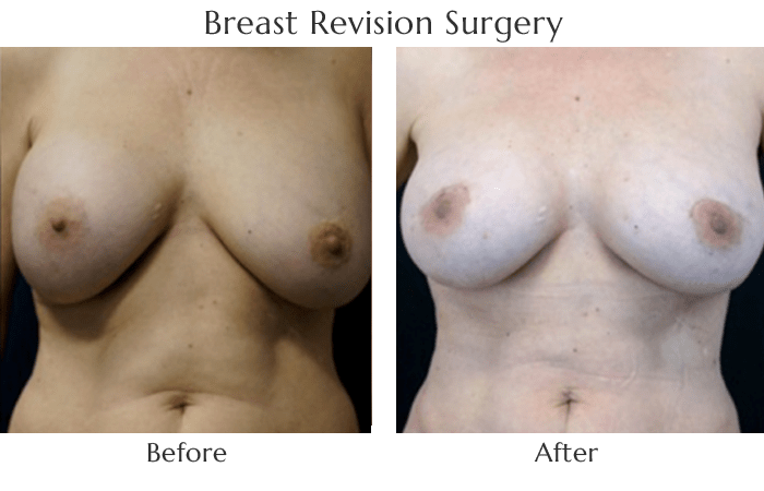 Breast Implant Revision with Gummy Bear Implants