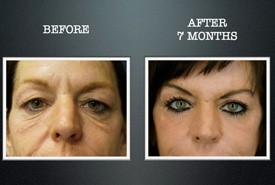 eyelid-surgery-before-and-after