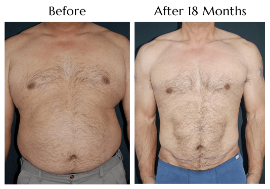 SlimLipo For Men at Obi Plastic Surgery!