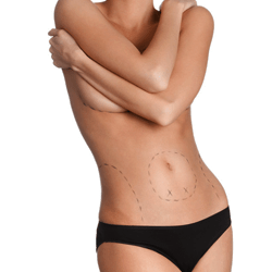 Stem Cell Enhanced Body Sculpting
