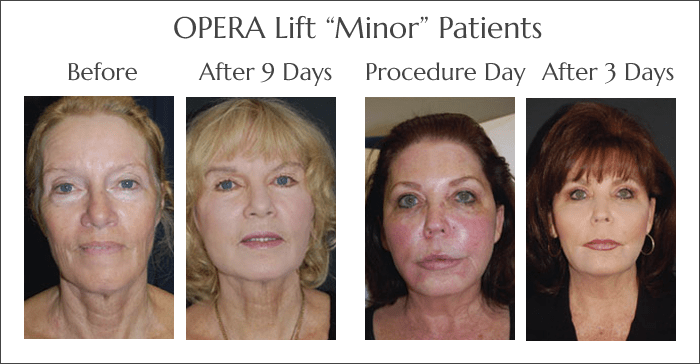 The OperaLift Minor Non Surgical Face Lift at Obi Plastic Surgery