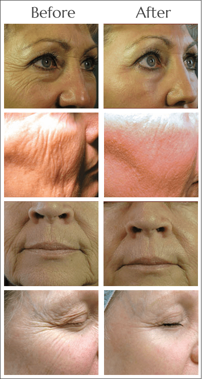 Laser Skin Tightening in Jacksonville at Obi Plastic Surgery