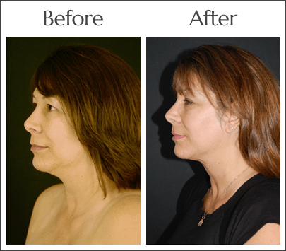 Neck Lift in Jacksonville at Obi Plastic Surgery