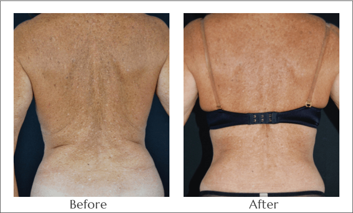 SlimLipo Laser Lipo for the Back