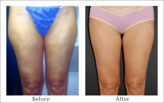 SlimLipo Laser Lipo for the Thighs