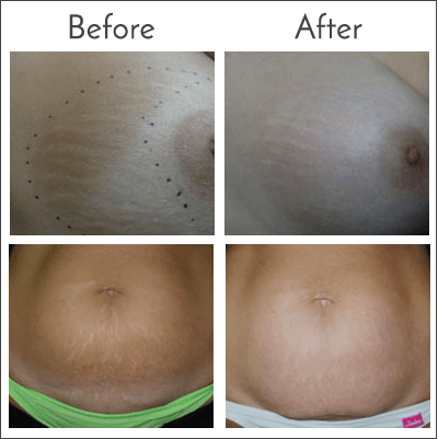 Laser Stretch Mark Removal at Obi Plastic Surgery in Jacksonville