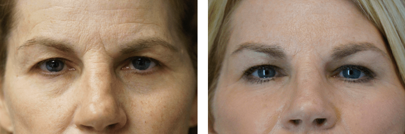 Non-Surgical OperaLift Facelift by Dr. Lewis J. Obi in Jacksonville