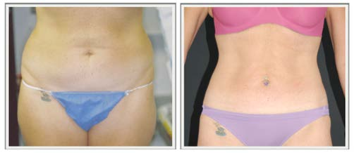 SlimLipo Scarless Laser Liposuction by Dr. Lewis J. Obi