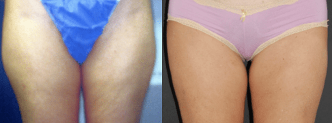 LifeSculpt Body Sculpting for the Thighs