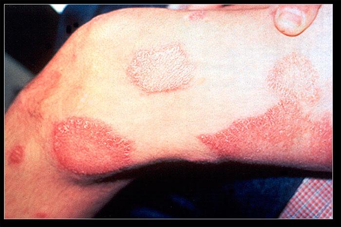 Perna com lesões de lepra limítrofe (borderline).  Foto: Wikipédia