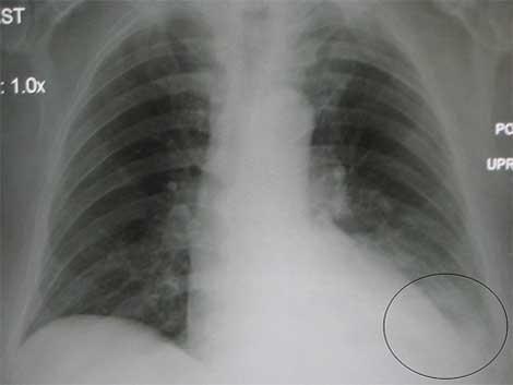 Raios X de tórax mostrando a evidência de pneumonia no lóbulo inferior esquerdo. (foto: http://es.wikipedia.org/)