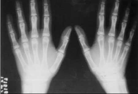 Tratamento para crianças com ossos de vidro vira realidade