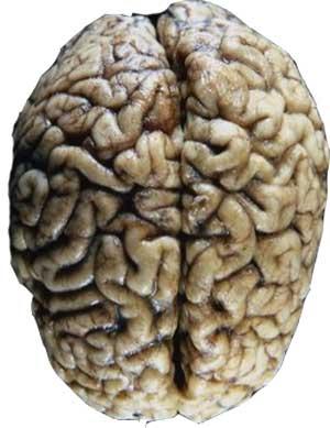 Hormônio sexual feminino pode ajudar a recuperar lesões cerebrais